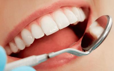 Cinco consecuencias de no reponer una pieza dental